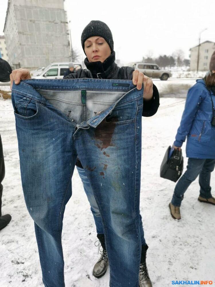 Джинсы Шестопалова после нападения